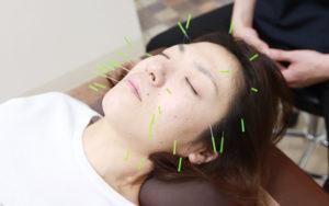 美容鍼施術の風景